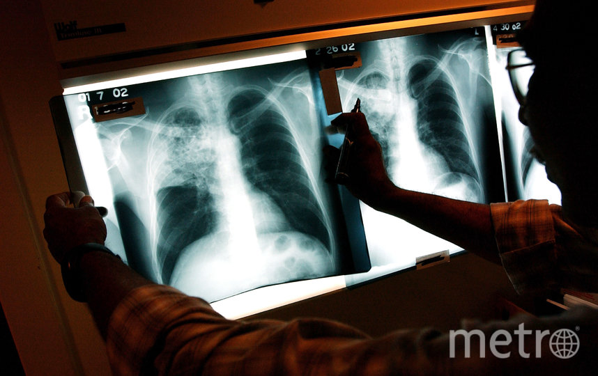 Французские врачи изучили почти 2 500 рентгеновских снимков пациентов за октябрь, ноябрь и декабрь 2019 года. Фото Getty