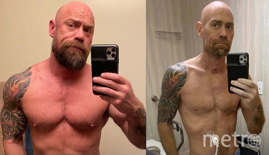 Майк Шульц за месяц до болезни и сразу после выздоровления. Фото instagram.com/thebearded_nurse