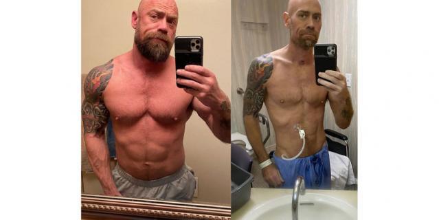 Майк Шульц за месяц до болезни и сразу после выздоровления.