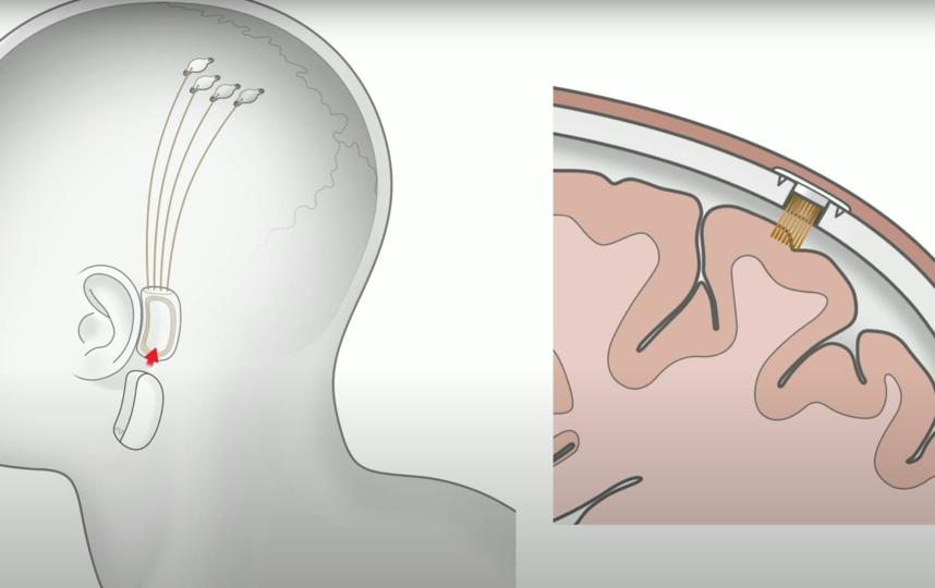 Предполагаемое местонахождение чипа. Фото Скриншот презентации Neuralink, Скриншот Youtube