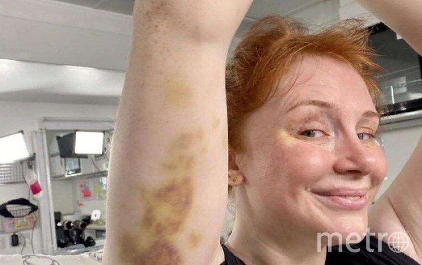 Звезда получила травмы на съемках. Фото instagram.com/xbrycedallashowardx.