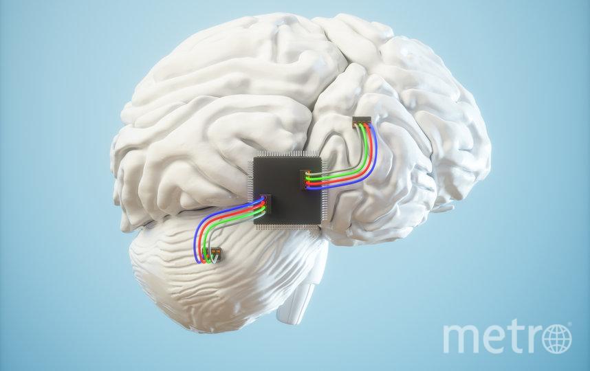 Эксперты считают, что использование мозговых имплантатов может быть рискованным, но преимущества перевешивают это. Фото iStock