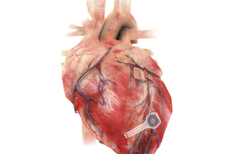 """Одним из основных достоинств этого кардиостимулятора является то, что для его удаления не требуется повторная операция. Фото """"Metro"""""""