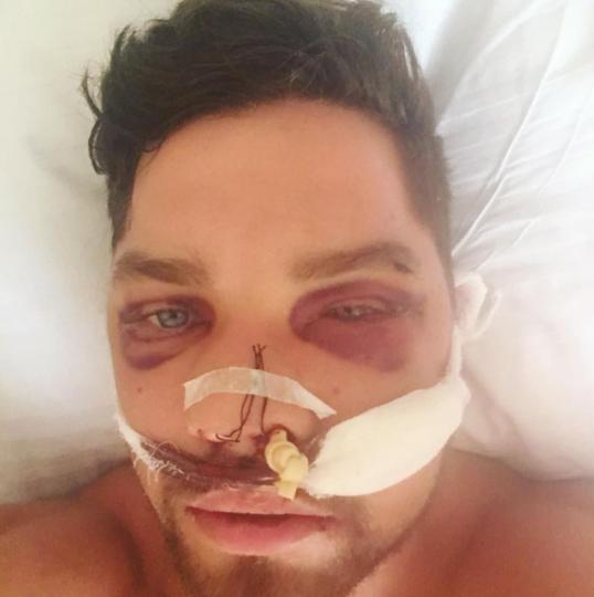 После избиения у Романа были сломаны кости лица и носа. Фото Instagram: @kova1ev