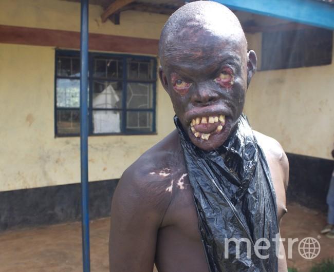 Help Orem Onyango.