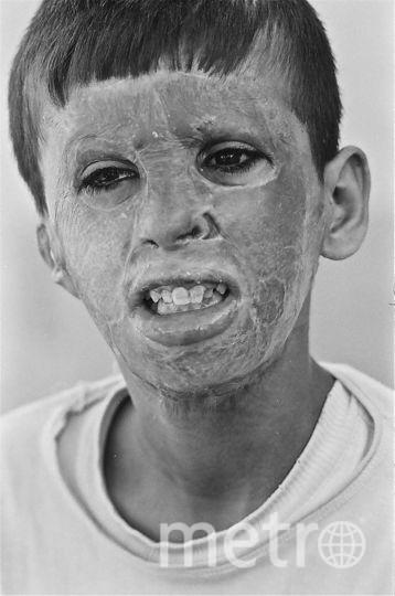 """Мальчик, пострадавший в войне. Фото Виктор Приходько, предоставлено пресс-службой Сада """"Эрмитаж"""""""