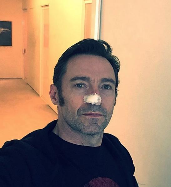 Хью Джекман после операции. Фото www.instagram.com/thehughjackman