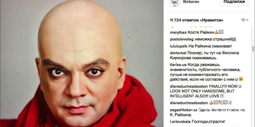 Филипп Киркоров изумил почитателей собственной лысиной