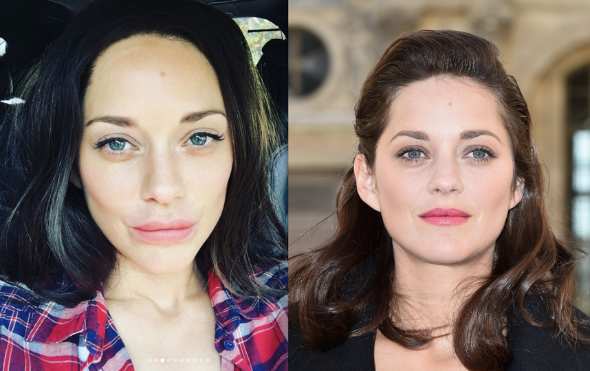 Фото после увеличения губ (слева) и фото до - справа.