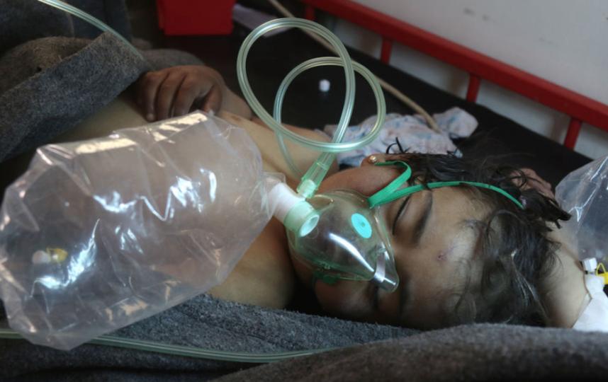 Ребёнок, пострадавший в результате химатаки в провинции Идлиб. Фото AFP