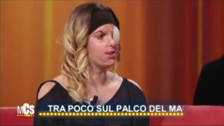 Итальянская модель показала лицо после кислотной мести бывшего возлюбленного. Фото Скриншот Instagram/_aventus