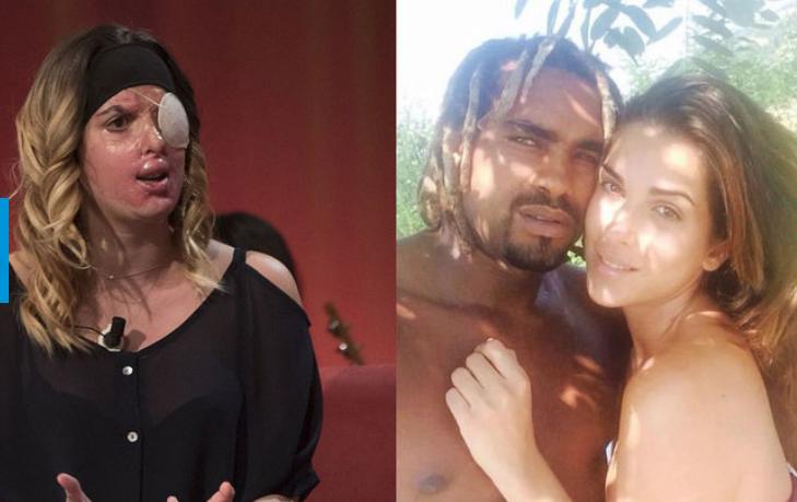 Итальянская модель показала лицо после кислотной мести бывшего возлюбленного. Фото Скриншот www.vesti.ru