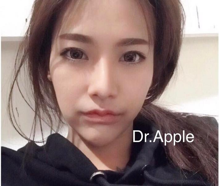 Фото: instagram.com/dr.apple_surgery/.
